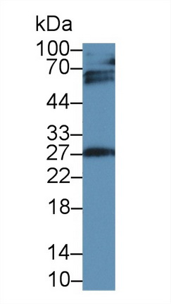 Western Blot; Sample: Rat Placenta lysate; Primary Ab: 2µg/ml Mouse Anti-Human IGFBP4 Antibody Second Ab: 0.2µg/mL HRP-Linked Caprine Anti-Mouse IgG Polyclonal Antibody