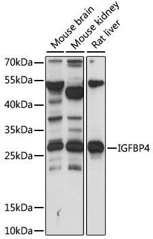 IGFBP4 Antibody - Western blot analysis of extracts of various cell lines, using IGFBP4 antibody at 1:1000 dilution. The secondary antibody used was an HRP Goat Anti-Rabbit IgG (H+L) at 1:10000 dilution. Lysates were loaded 25ug per lane and 3% nonfat dry milk in TBST was used for blocking. An ECL Kit was used for detection and the exposure time was 15s.