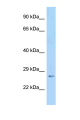 IGFBP5 antibody Western blot of Mouse Pancreas lysate. Antibody concentration 1 ug/ml.  This image was taken for the unconjugated form of this product. Other forms have not been tested.
