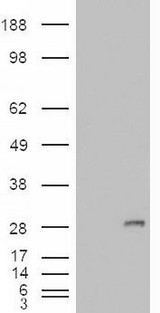 HEK293 overexpressing IGFBP6 (RC204060) and probed with (mock transfection in first lane).