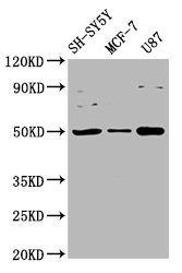 Western Blot Positive WB detected in: SH-SY5Y whole cell lysate, MCF-7 whole cell lysate, U87 whole cell lysate All Lanes: IGHM antibody at 3.4µg/ml Secondary Goat polyclonal to rabbit IgG at 1/50000 dilution Predicted band size: 50, 52 KDa Observed band size: 50 KDa