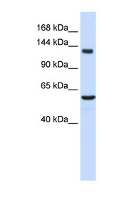 IGSF1 antibody LS-C110660 Western blot of Fetal Liver lysate.  This image was taken for the unconjugated form of this product. Other forms have not been tested.