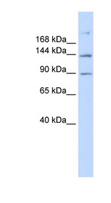 ABCB4 / MDR3 Antibody - ABCB4 antibody Western blot of 293T cell lysate. This image was taken for the unconjugated form of this product. Other forms have not been tested.
