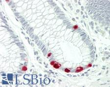 ABCC5 / MRP5 Antibody - Human Colon: Formalin-Fixed, Paraffin-Embedded (FFPE)