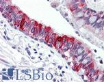 Anti-ABL1 antibody IHC of human lung. Immunohistochemistry of formalin-fixed, paraffin-embedded tissue after heat-induced antigen retrieval. Antibody concentration 10 ug/ml. This image was taken for the unmodified form of this product. Other forms have not been tested.