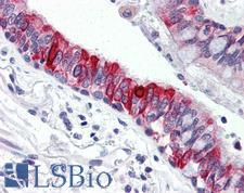 ABL1 / c-ABL Antibody - Anti-ABL1 antibody IHC of human lung. Immunohistochemistry of formalin-fixed, paraffin-embedded tissue after heat-induced antigen retrieval. Antibody concentration 10 ug/ml. This image was taken for the unmodified form of this product. Other forms have not been tested.