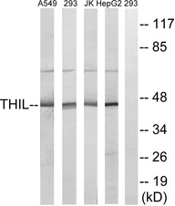 Western blot analysis of lysates from HepG2, Jurkat, 293, and A549 cells, using ACAT1 Antibody. The lane on the right is blocked with the synthesized peptide.