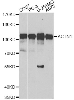 ACTN1 Antibody - Western blot analysis of extracts of various cell lines, using ACTN1 antibody at 1:500 dilution. The secondary antibody used was an HRP Goat Anti-Rabbit IgG (H+L) at 1:10000 dilution. Lysates were loaded 25ug per lane and 3% nonfat dry milk in TBST was used for blocking.