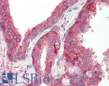 ADAMTS4 Antibody - Human Prostate: Formalin-Fixed, Paraffin-Embedded (FFPE).  This image was taken for the unconjugated form of this product. Other forms have not been tested.