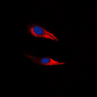 Immunofluorescent analysis of GPR116 staining in HeLa cells. Formalin-fixed cells were permeabilized with 0.1% Triton X-100 in TBS for 5-10 minutes and blocked with 3% BSA-PBS for 30 minutes at room temperature. Cells were probed with the primary antibody in 3% BSA-PBS and incubated overnight at 4 ??C in a humidified chamber. Cells were washed with PBST and incubated with a DyLight 594-conjugated secondary antibody (red) in PBS at room temperature in the dark. DAPI was used to stain the cell nuclei (blue).