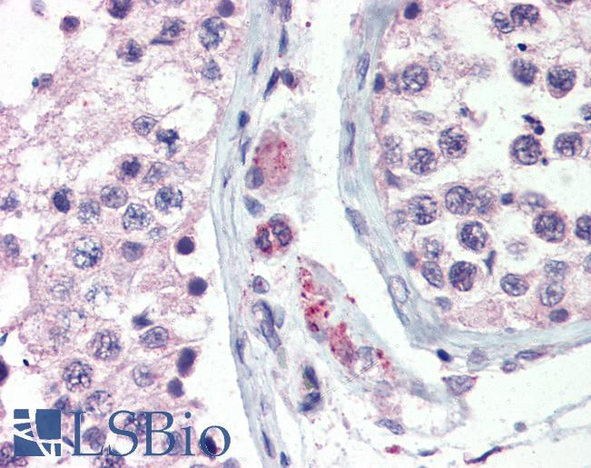 Anti-GPR98 antibody IHC of human testis. Immunohistochemistry of formalin-fixed, paraffin-embedded tissue after heat-induced antigen retrieval.