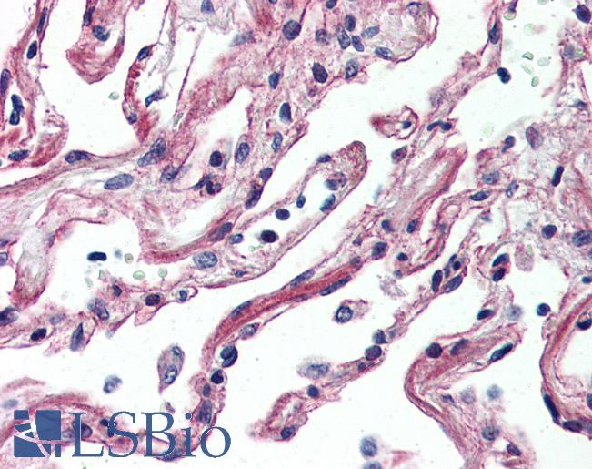 Anti-ADORA2A antibody IHC of human lung. Immunohistochemistry of formalin-fixed, paraffin-embedded tissue after heat-induced antigen retrieval.