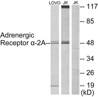 ADRA2A Antibody - Western blot analysis of lysates from Jurkat and LOVO cells, using Adrenergic Receptor alpha-2A Antibody. The lane on the right is blocked with the synthesized peptide.