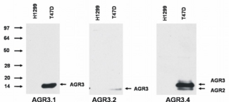 AGR2/AGR3 Antibody - Western blotting analysis of AGR3 protein by AGR3.1 and AGR3.2 antibody, and of AGR3 and AGR2 protein by AGR3.4 antibody in T47D breast cancer cell line compared to H1229 lung carcinoma cell line.