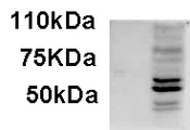 Antibody staining of IFNbeta-treated WI-38 lysate (35 ug protein in RIPA buffer). Primary incubation was 1 hour. Detected by chemiluminescence.