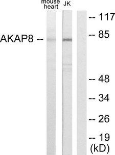 AKAP8 / AKAP95 Antibody - Western blot analysis of lysates from mouse heart and Jurkat cells, using AKAP8 Antibody. The lane on the right is blocked with the synthesized peptide.