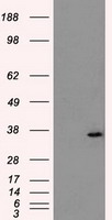 AKR1A1 Antibody - HEK293T cells were transfected with the pCMV6-ENTRY control (Left lane) or pCMV6-ENTRY AKR1A1 (Right lane) cDNA for 48 hrs and lysed. Equivalent amounts of cell lysates (5 ug per lane) were separated by SDS-PAGE and immunoblotted with anti-AKR1A1.