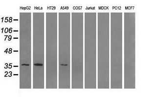 AKR1A1 Antibody - Western blot of extracts (35 ug) from 9 different cell lines by using anti-AKR1A1 monoclonal antibody.
