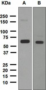 ALDH2 Antibody - Western blot analysis on (A) HepG2 and (B) A549 cell lysates using anti-Aldh2 antibody.
