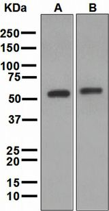 ALDH2 Antibody - Western blot analysis on (A) mouse liver and (B) rat liver lysates using anti-Aldh2 antibody.