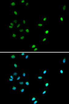 AML1 / RUNX1 Antibody - Immunofluorescence analysis of A549 cell using RUNX1 antibody. Blue: DAPI for nuclear staining.