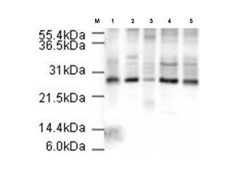 ANAPC10 / APC10 Antibody - Anti-APC10 Antibody - Western Blot. Affinity Purified Rabbit anti-APC10 was used at a 1:500 dilution to detect human APC10 in various cell extracts. This antibody clearly detects a ~26 kD band corresponding to human APC10 (predicted molecular weight is 21 kD). All lanes contain 20 ug of lysate or extract as follows: lane 1, HeLa nuclear extract; lane 2, HeLa whole cell lysate; lane 3, A431 whole cell lysate; lane 4, Jurkat whole cell lysate; lane 5, 293 whole cell lysate. Primary antibody was reacted with the membrane at room temperature for 1 h. After subsequent washing, a 1:5000 dilution of HRP conjugated Gt-a-Rabbit IgG was used for visualization. Exposure time was 4 min.