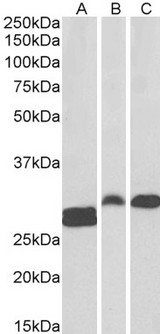 ANP32B Antibody - Goat Anti-SSP29 / ANP32B Antibody (0.1µg/ml) staining of Human Tonsil (A) and Rat (B) and Pig (C) Spleen lysate (35µg protein in RIPA buffer). Primary incubation was 1 hour. Detected by chemiluminescencence.