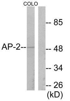AP-2 Alpha/Beta Antibody - Western blot analysis of lysates from COLO205 cells, using AP-2 Antibody. The lane on the right is blocked with the synthesized peptide.