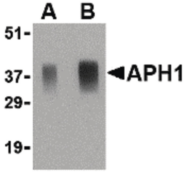 APH1A / APH-1 Antibody - Western blot of APH1 in human brain tissue lysate with APH1 antibody at (A) 0.5 and (B) 1 ug/ml.