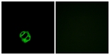 Immunofluorescence analysis of MCF7 cells, using AGTRL1 Antibody. The picture on the right is blocked with the synthesized peptide.