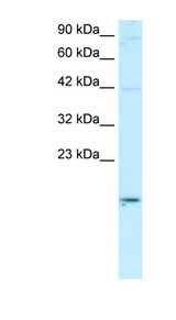 APOBEC3G / CEM15 Antibody - APOBEC3G antibody Western blot of Daudi lysate. This image was taken for the unconjugated form of this product. Other forms have not been tested.