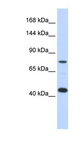 LRP8 / APOER2 antibody Western blot of Transfected 293T cell lysate. This image was taken for the unconjugated form of this product. Other forms have not been tested.