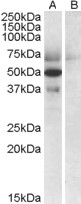 APOL4 / Apolipoprotein L 4 antibody (0.5µg/ml) staining of Human Placenta lysate (35µg protein in RIPA buffer) with (B) and without (A) blocking with the immunising peptide. Detected by chemiluminescence.