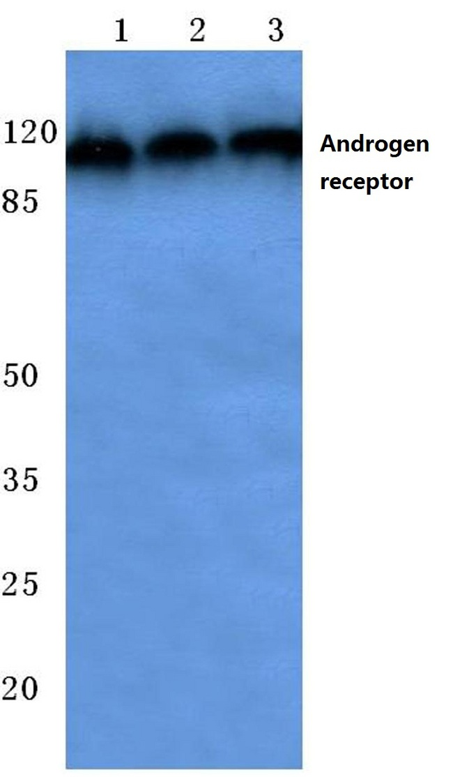 AR / Androgen Receptor Antibody - Western blot (WB) analysis of AR (E646) pAb at 1:500 dilution. Lane1:HEK293T cell lysate. Lane2:NIH-3T3 cell lysate. Lane3:PC12 cell lysate.