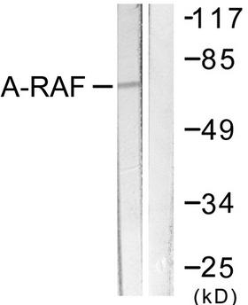 ARAF / ARAF1 / A-RAF Antibody - Western blot analysis of lysates from HeLa cells, treated with PMA 125ng/ml 30', using A-RAF Antibody. The lane on the right is blocked with the synthesized peptide.