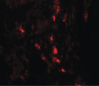 Immunofluorescence of ARSB in human lung tissue with ARSB antibody at 20 ug/ml.