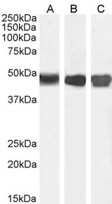 Goat Anti-Argininosuccinate synthetase 1 Antibody (0.01µg/ml) staining of Human Kidney (A) Mouse Liver (B) and (0.03ug/ml) Rat Kidney (C) lysate (35µg protein in RIPA buffer). Detected by chemiluminescencence.