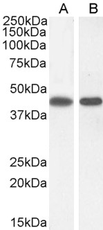 Goat Anti-Argininosuccinate synthetase 1 Antibody (0.3µg/ml) staining of A431 (A) and (1ug/ml) NIH3T3(B) cell lysate (35µg protein in RIPA buffer). Detected by chemiluminescencence.