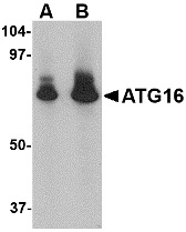 ATG16L1 / ATG16L Antibody - Western blot of ATG16 in HeLa cell lysate with ATG16 antibody at (A) 1 and (B) 2 ug/ml.