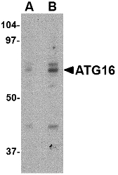 ATG16L1 / ATG16L Antibody - Western blot of ATG16 in HeLa cell lysate with ATG16 antibody at (A) 0.25 and (B) 0.5 ug/ml.