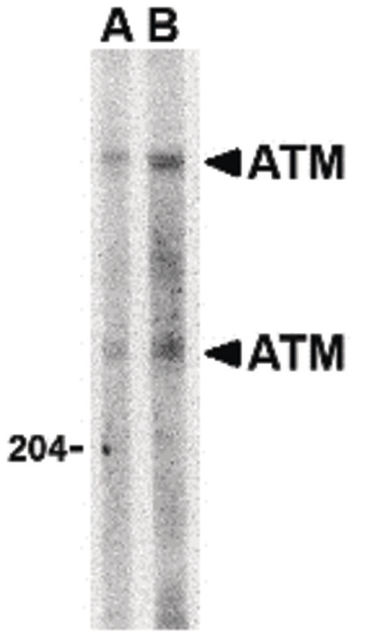 ATM Antibody - Western blot of ATM in Daudi whole cell lysate with ATM antibody at (A) 1 and (B) 2 ug/ml.