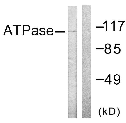 ATP1A1 Antibody - Western blot analysis of lysates from 293 cells, treated with PMA 125ng/ml 30', using ATPase Antibody. The lane on the right is blocked with the synthesized peptide.
