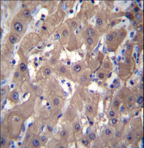 BABP / AKR1C2 Antibody - AKR1C2 Antibody immunohistochemistry of formalin-fixed and paraffin-embedded human liver tissue followed by peroxidase-conjugated secondary antibody and DAB staining.