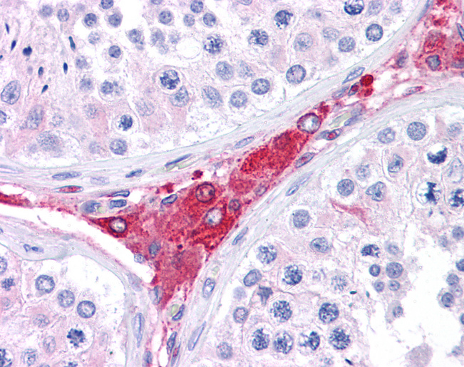 Anti-BACE1 antibody IHC of human testis. Immunohistochemistry of formalin-fixed, paraffin-embedded tissue after heat-induced antigen retrieval. Antibody concentration 5 ug/ml.  This image was taken for the unconjugated form of this product. Other forms have not been tested.