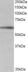 BAIAP2 / IRSP53 Antibody - Antibody staining (1 ug/ml) of Human Brain lysate (RIPA buffer, 35 ug total protein per lane). Primary incubated for 1 hour. Detected by Western blot of chemiluminescence.