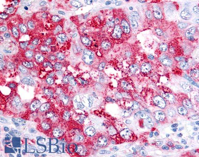 Anti-BEST4 antibody IHC of human Lung, Non-Small Cell Carcinoma. Immunohistochemistry of formalin-fixed, paraffin-embedded tissue after heat-induced antigen retrieval.