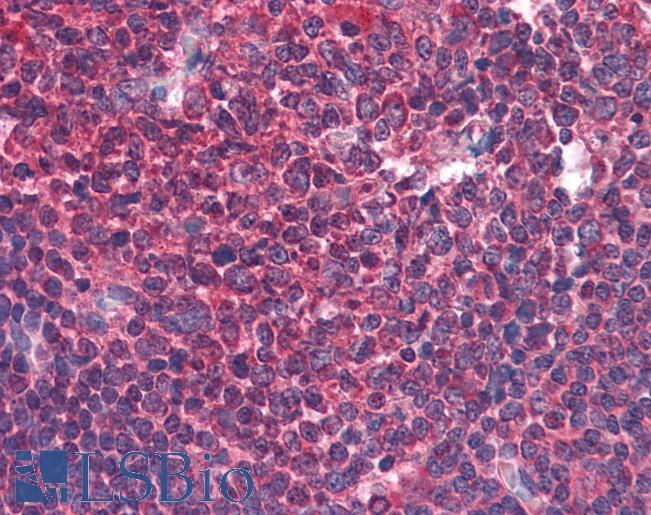 Anti-cIAP2 antibody IHC of human tonsil. Immunohistochemistry of formalin-fixed, paraffin-embedded tissue after heat-induced antigen retrieval. Antibody concentration 10 ug/ml.