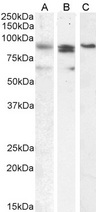 PRDM1 / MEL1 Antibody (0.1µg/ml) staining of A431 (A), (2ug/ml) K562 (B) and (1ug/ml) Nuclear K562 (C) cell lysate (35µg protein in RIPA buffer). Detected by chemiluminescencence.