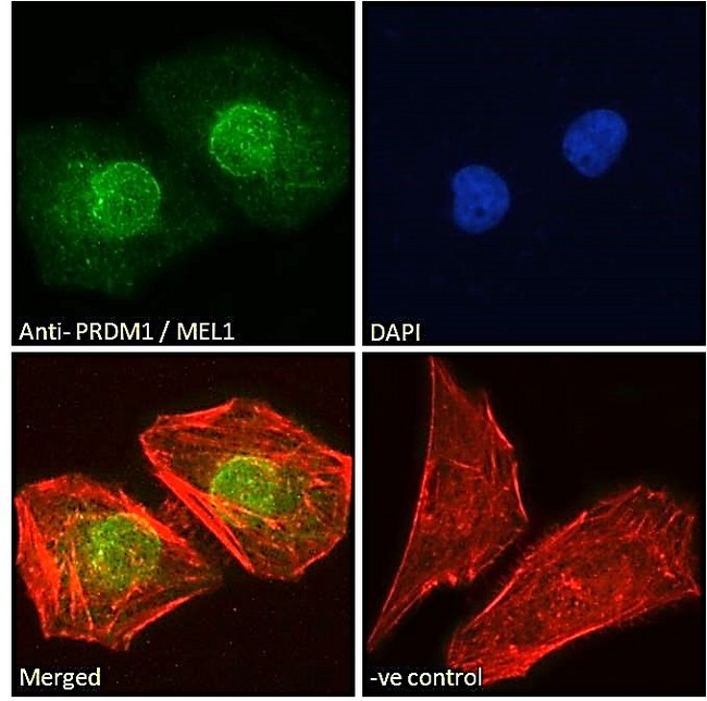 BLIMP1 / PRDM1 Antibody - PRDM1 / MEL1 Antibody Immunofluorescence analysis of paraformaldehyde fixed HeLa cells, permeabilized with 0.15% Triton. Primary incubation 1hr (10ug/ml) followed by Alexa Fluor 488 secondary antibody (2ug/ml), showing nuclear staining. Actin filaments were stained with phalloidin (red) and the nuclear stain is DAPI (blue). Negative control: Unimmunized goat IgG (10ug/ml) followed by Alexa Fluor 488 secondary antibody (2ug/ml).