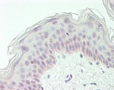 BLZF1 Antibody - Human Skin: Formalin-Fixed, Paraffin-Embedded (FFPE).  This image was taken for the unconjugated form of this product. Other forms have not been tested.